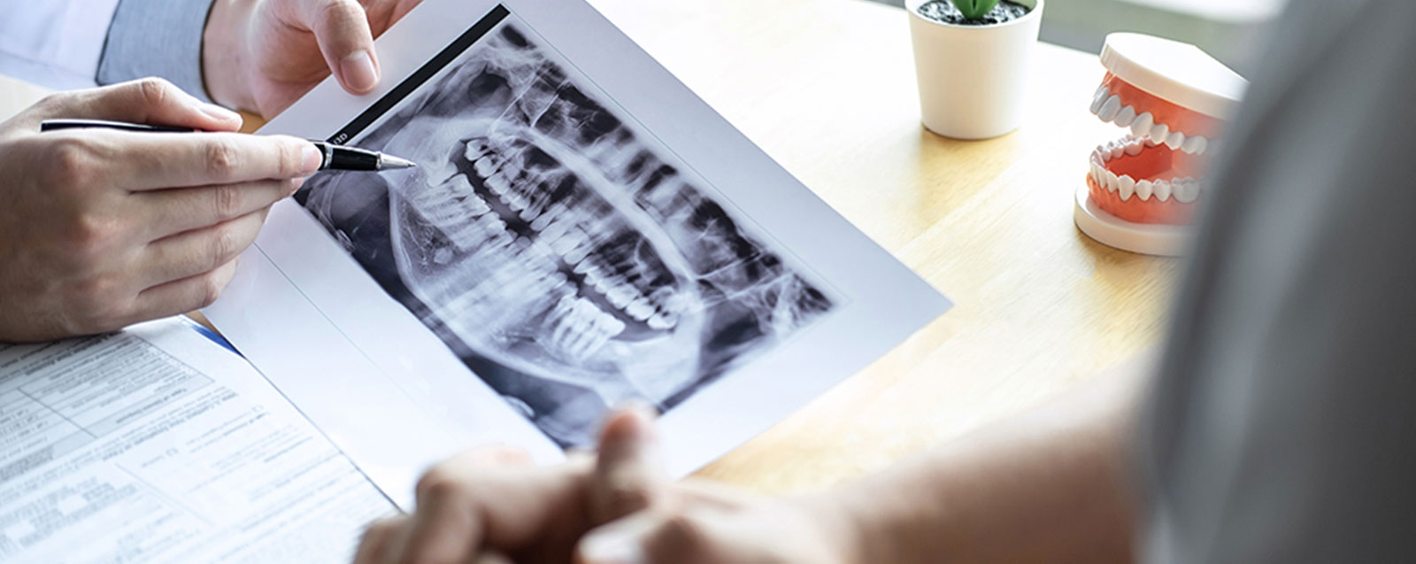 Funktionstherapie bei Kieferproblemen