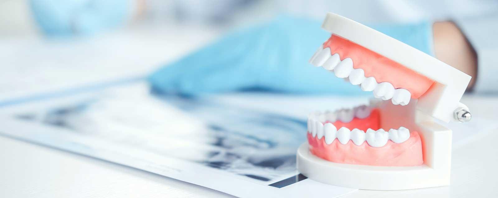 Zahnersatz Zahnarzt Dominik Meling