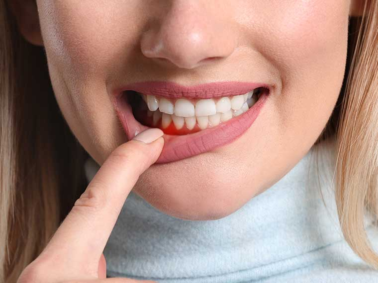 Symptome bei Parodontiotis